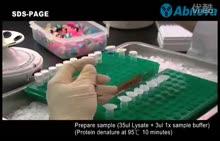 高中生物(人教版)选修1专题5同步教学实验视频:5.3 血红蛋白的提取和分离(flv) (5份打包)