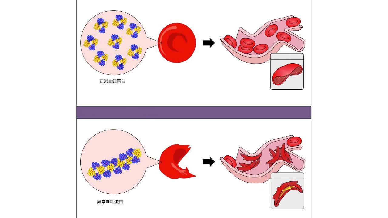 5.1 镰刀型细胞贫血症 视频-【火花学院】人教版必修二高一生物